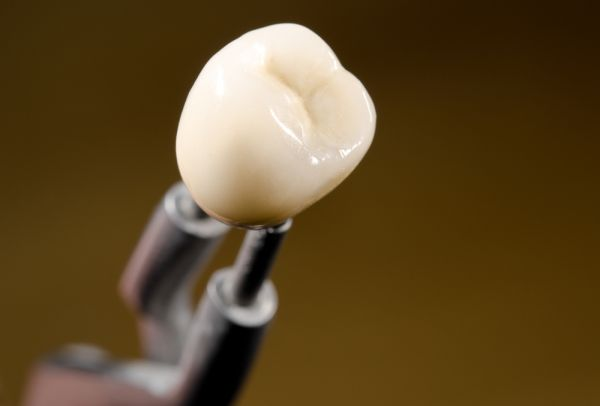 What To Do When Your Dental Crowns Are Turning Yellow