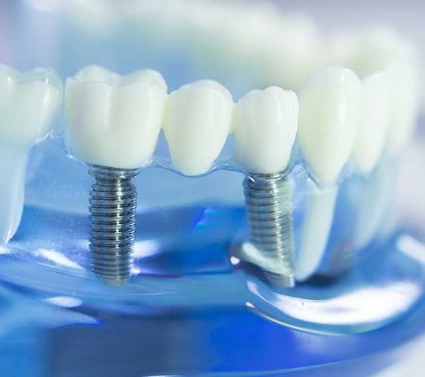 Mountain View Dental Implants